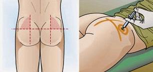 Как делать внутримышечный укол в дельту
