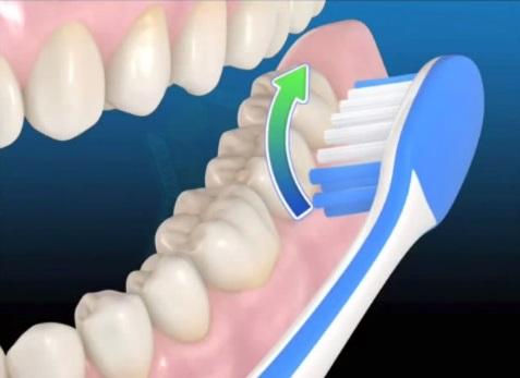 Реферат как правильно чистить зубы 6745