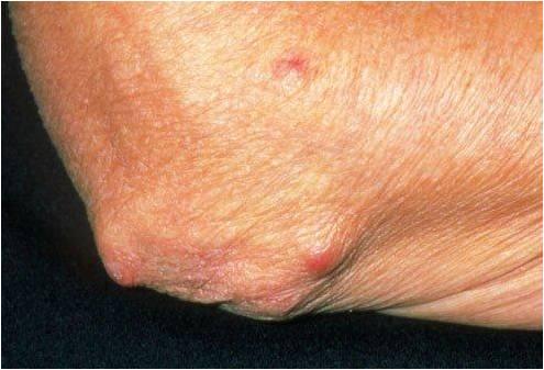 Отзовитесь те кто вылечил артрит мелких суставов вет препараты цена гель-крем для суставов