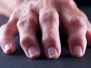 arthritic-hand-fcb452a724b19825f943d0d32a02196ae0e42814-s6-c30