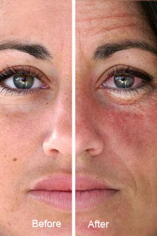 Как влияет косметика на нашу кожу