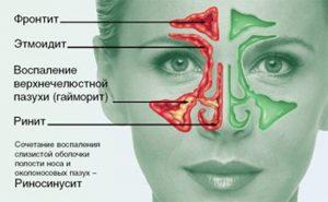 doktor2_1360586607_kak-lechit-sinusit-2