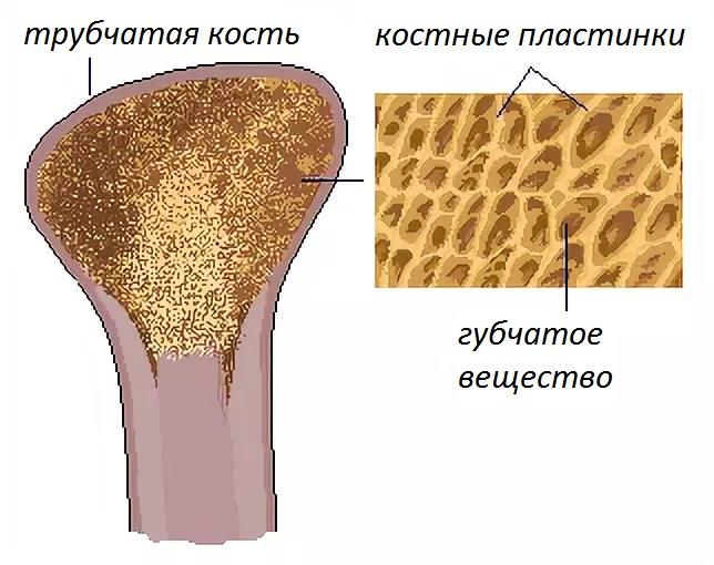 Остеопороз: симптомы, лечение, профилактика | Азбука здоровья