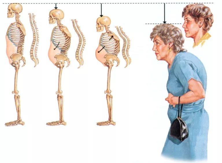 Остеопороз у женщин при менопаузе