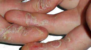 Псориаз между пальцев дырки