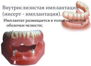 Имплантация зубов под ключ: что значит и что входит, как делается и сколько стоит имплантация зубов под ключ в Москве?