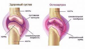 Изображение - Деформирующий остеоартроз крупных суставов f7418389e26cb367a019108add5703fd1-300x175